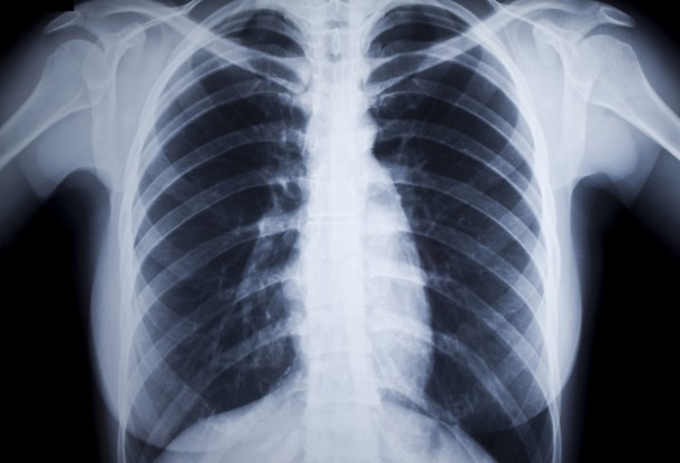 a dohányzásból származó tüdőbetegség tünetei)